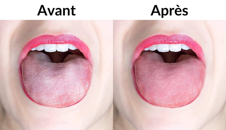Efficacite gratte langue